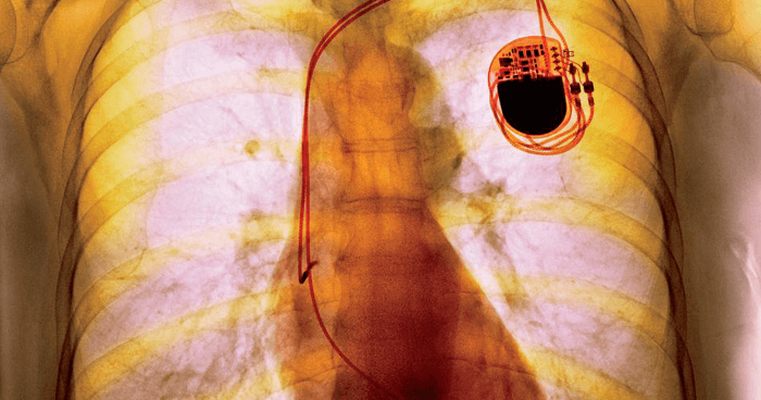 Pacemaker x-ray