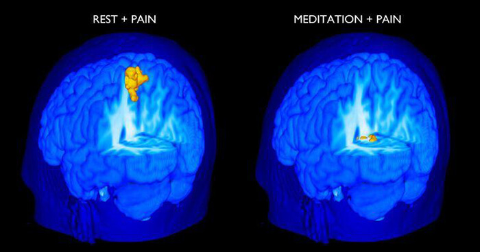 Mindfulness and pain
