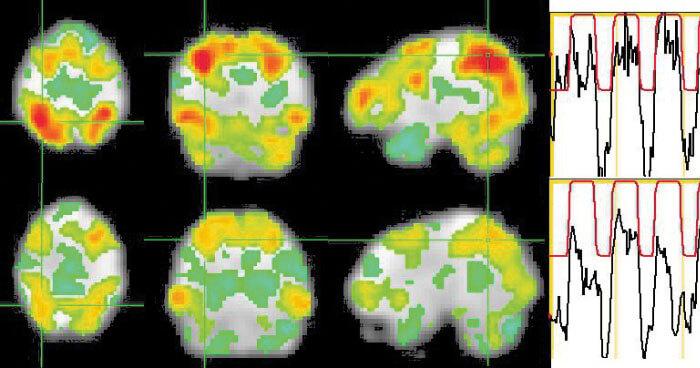 Neuroscience Creativity Depression