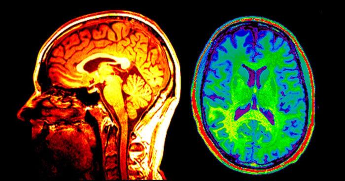 Brain scans children inherit anxiety