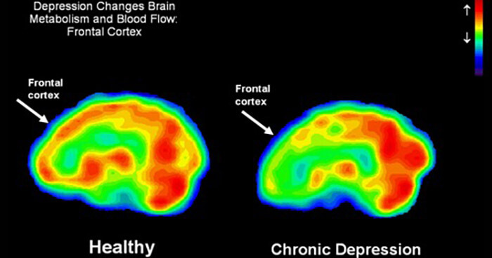 Parasites, bacteria or viruses may cause changes in the brain.
