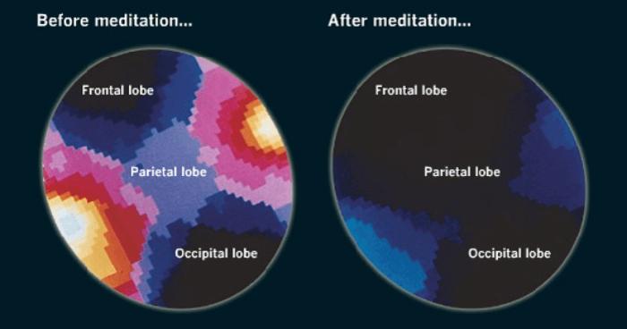 Brains of meditators